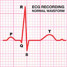 Afbeelding van een ECG opname